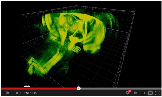Imaging cerebrale, CLARITY rivoluziona le analisi post-mortem (video)