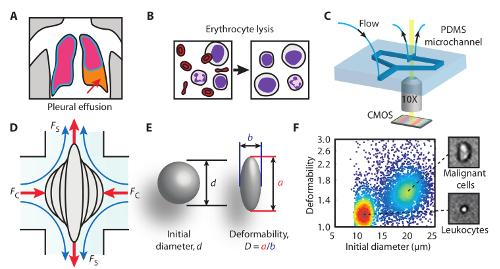 Citometria a deformabilità, ultima frontiera della ricerca di cellule tumorali libere