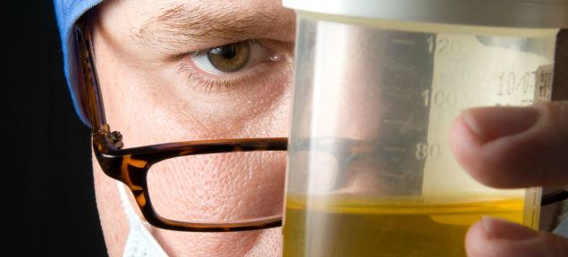 cancro prostata test urine MIPS