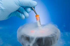 epatociti crioconservati