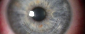 test genetico distrofia corneale