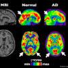 fegato e metabolismo dei grassi in relazione con perdita di memoria e alzheimer