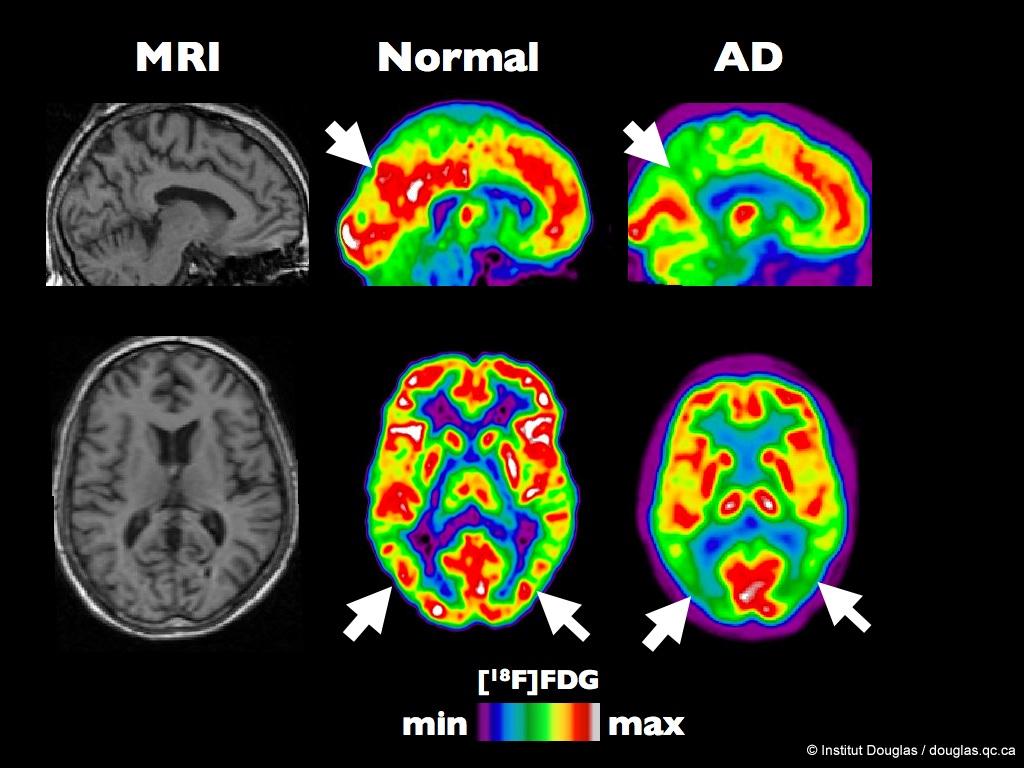 Fegato e grasso corporeo, identificata correlazione con alzheimer