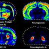 imaging maldi spettrometria