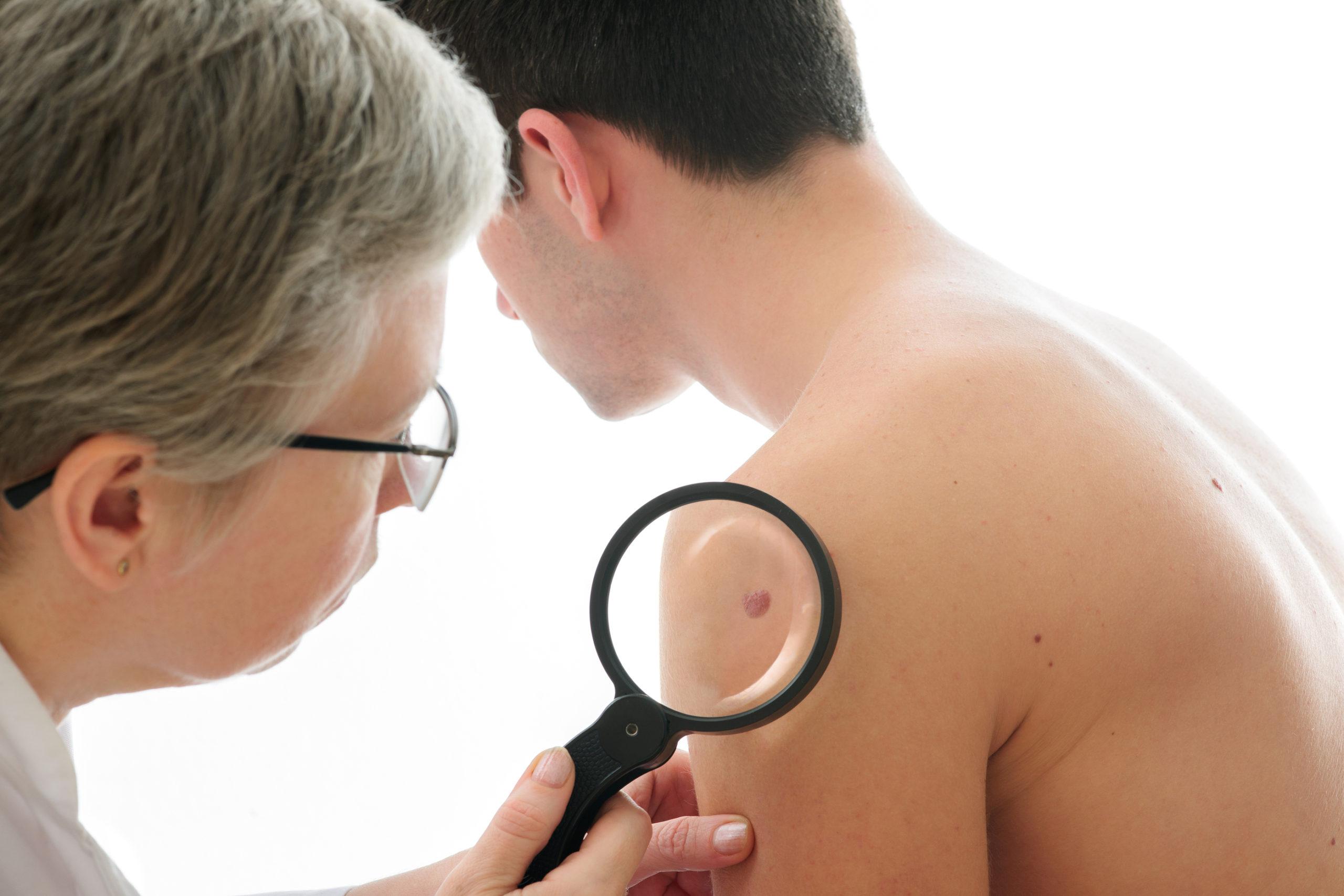 melanoma maligno benigno dermatologo