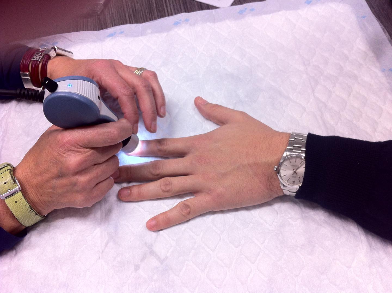 Conta dei Leucociti senza prelievo di sangue, nuova tecnologia dall' MIT