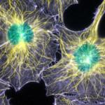 Microtubuli e filamenti di actina in fibroblasti